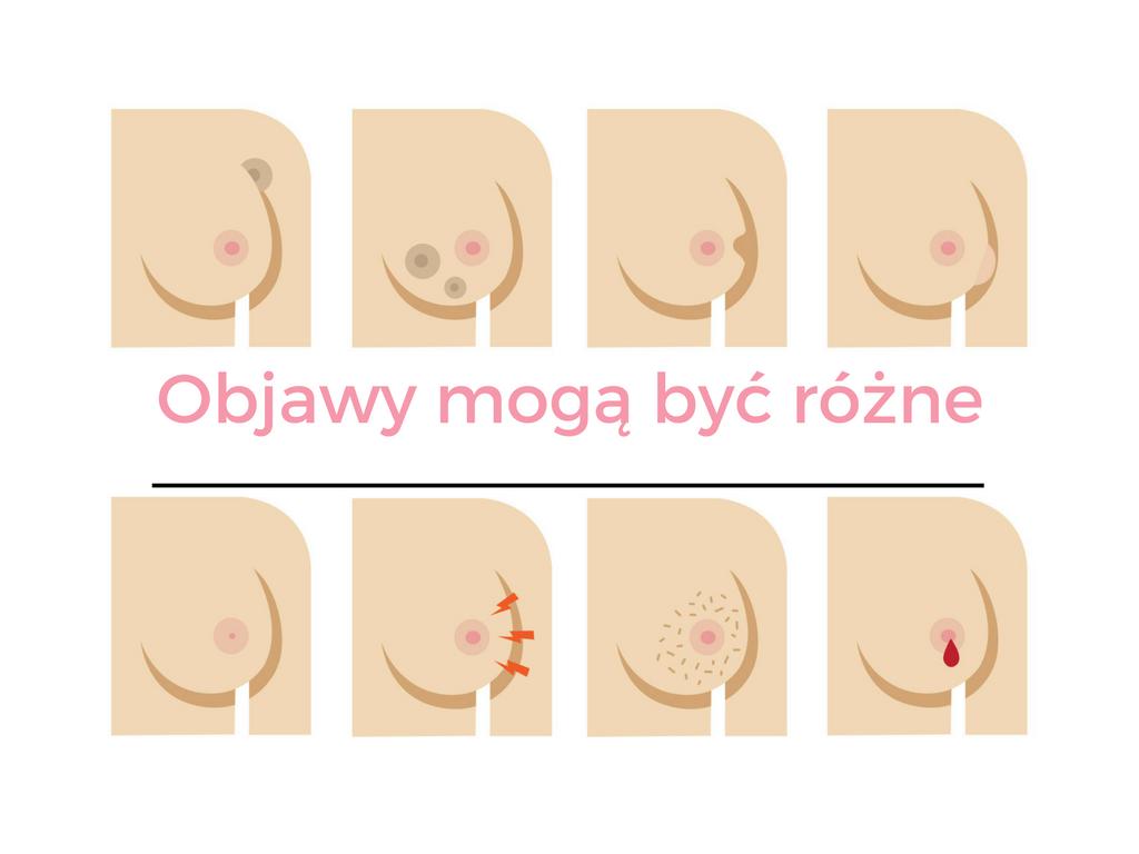 Wiedzieć = żyć. Rak piersi ma wiele twarzy