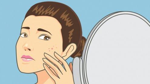 5 ciekawostek na temat trądziku